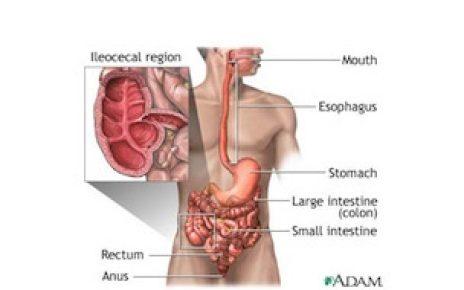 Crohn's Disease Diagram